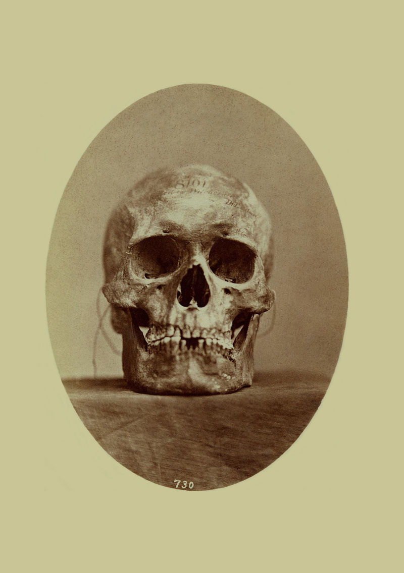Skull of a Tonkaway Indian or Chief 1869 (c).