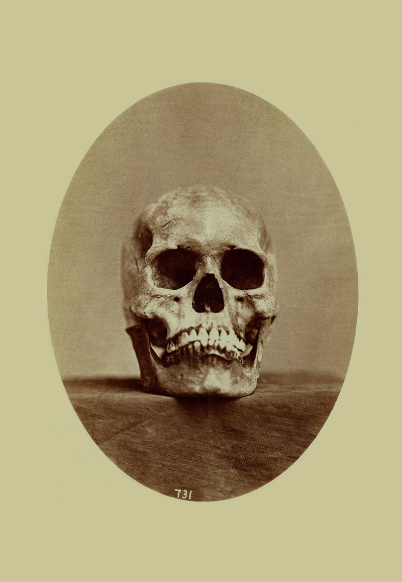 An old photograph of the Skull of a Tonkaway Indian or Chief 1869 [D].
